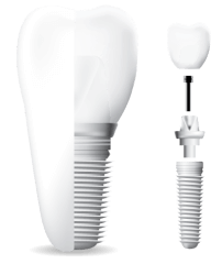 A graphic showing a dental implant.