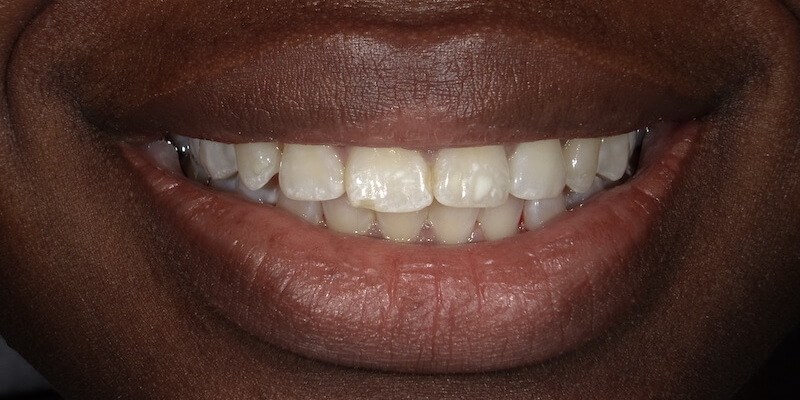 Before picture of a patient's teeth.