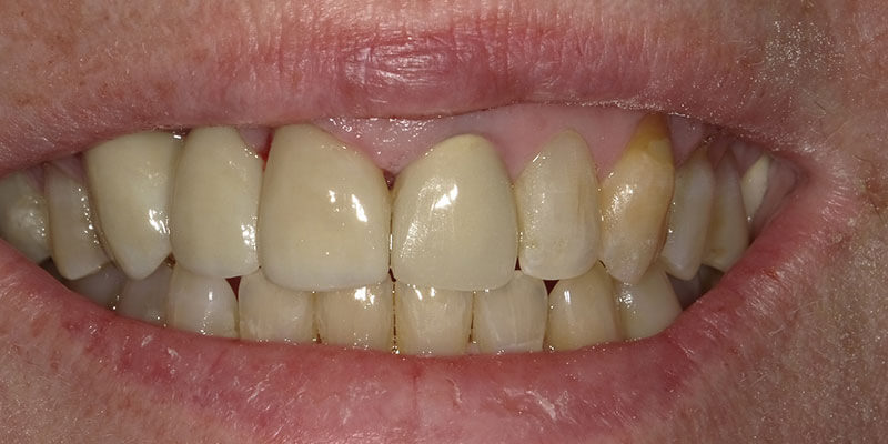 After photo a patient who got dental implants.