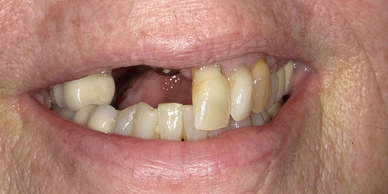 before picture of a patient with missing and crooked teeth.
