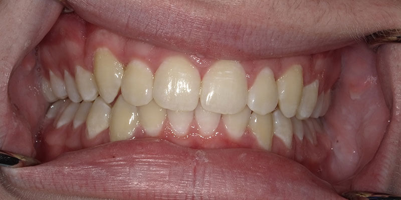 Invisalign after photo of straight teeth.