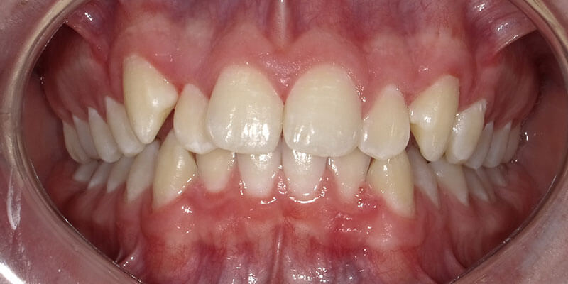 Patient's crooked teeth before Invisalign treatment.