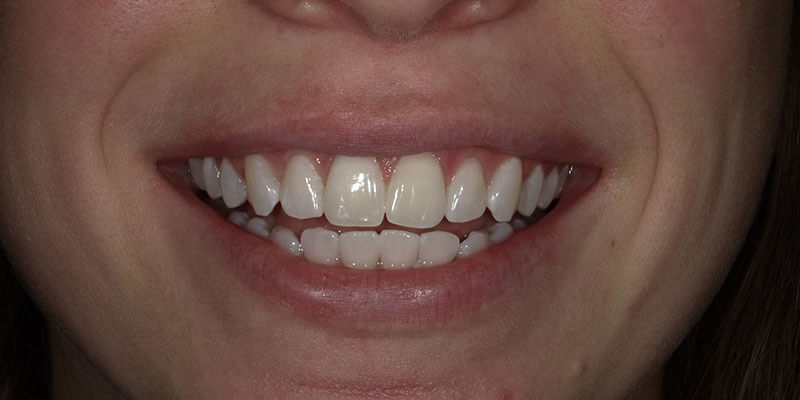 Zoom Whitening after photo.
