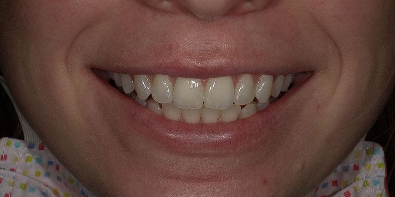 Before Zoom Teeth Whitening.