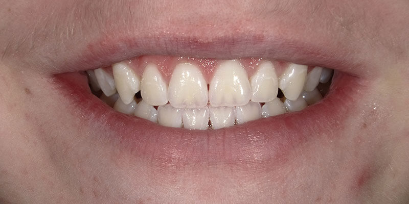 After picture of a patient's white smile after Zoom whitening.