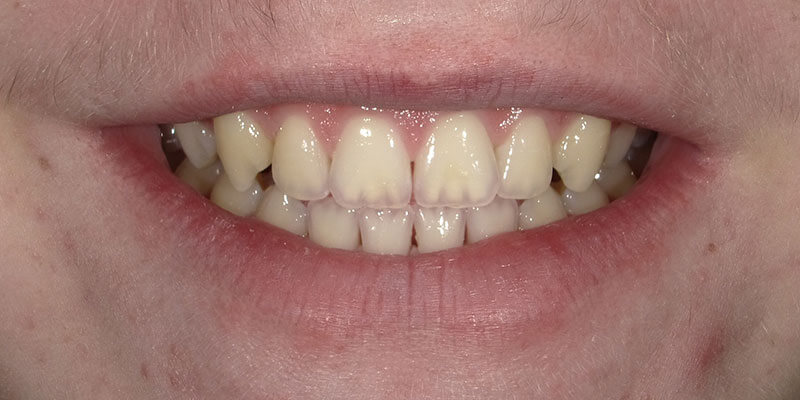 Before picture of a patient's white smile after Zoom whitening.